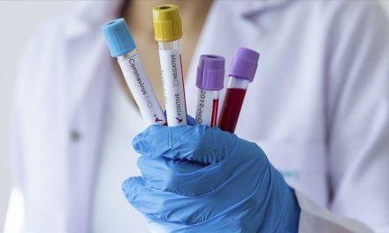 covid: 12 nouveaux cas testés positifs au coronavirus, 11 nouveaux guéris.