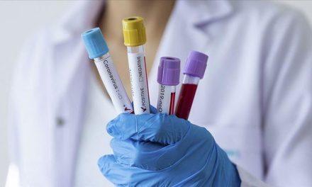Covid-19/SÉNÉGAL: 78 nouveaux cas, 39 guéris, 3 décès, 2.432 personnes sous traitement
