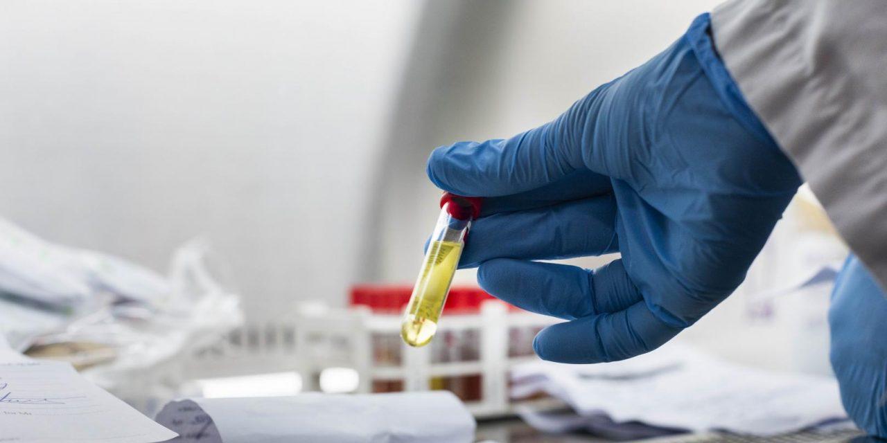 Covid-19 : les Tests de diagnostic rapide mis sur le marché